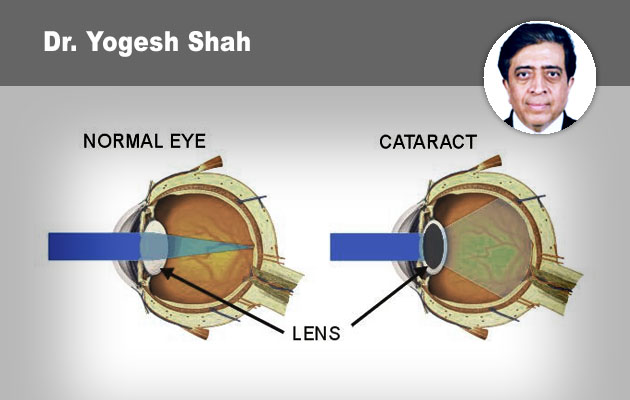 A to Z of Phacodynamics and  its Applications in different types of Cataracts